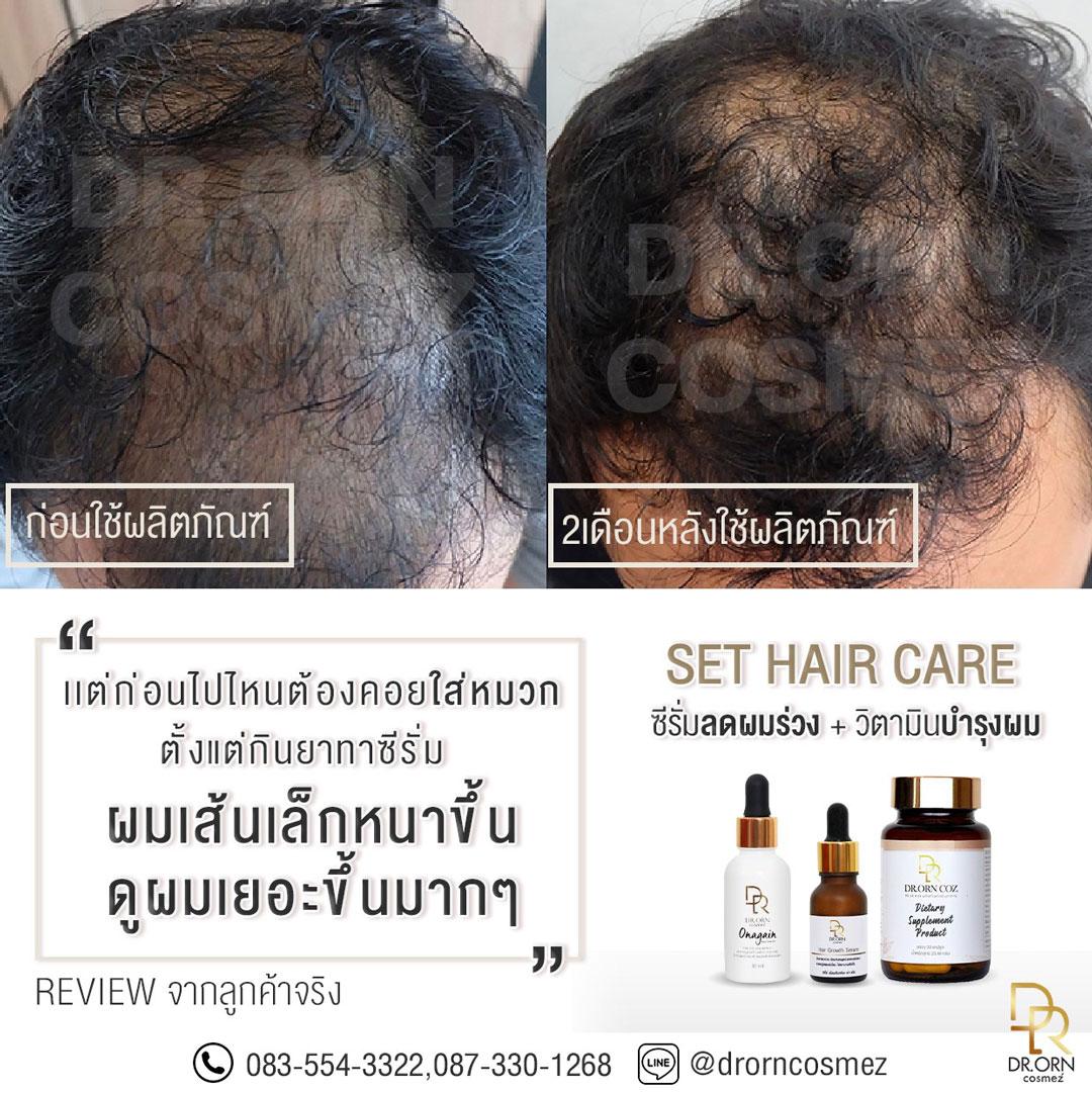 บิ๊กเอ็ม วิตามินบำรุงผม Hair Supplement 3