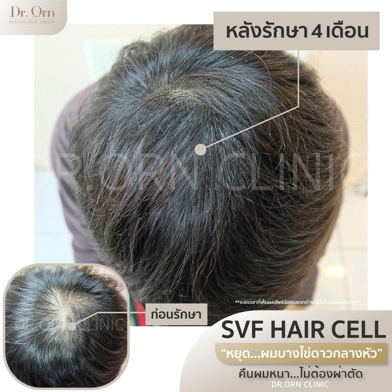 ปลูกถ่าย-svf-hair-cell-ลดผมร่วง-เพิ่มผมหนาภายใน-1-เดือน