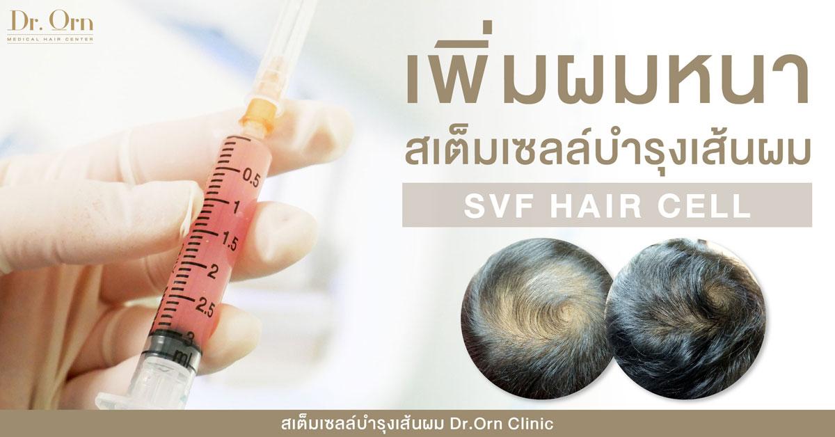 ปกสเต็มเซลล์บำรุงเส้นผม-เพิ่มผมหนาลดsvf-hair-cell