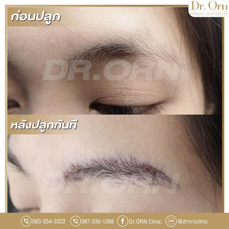 ปลูกคิ้ว-รีวิวปลูกคิ้ว-drornclinic-4